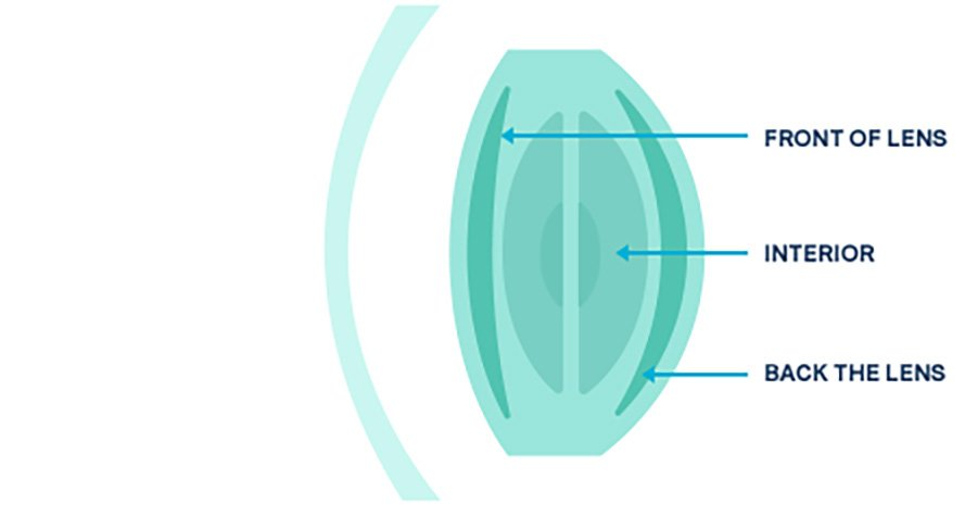 Diagram showing the front, interior and back of an eye lens