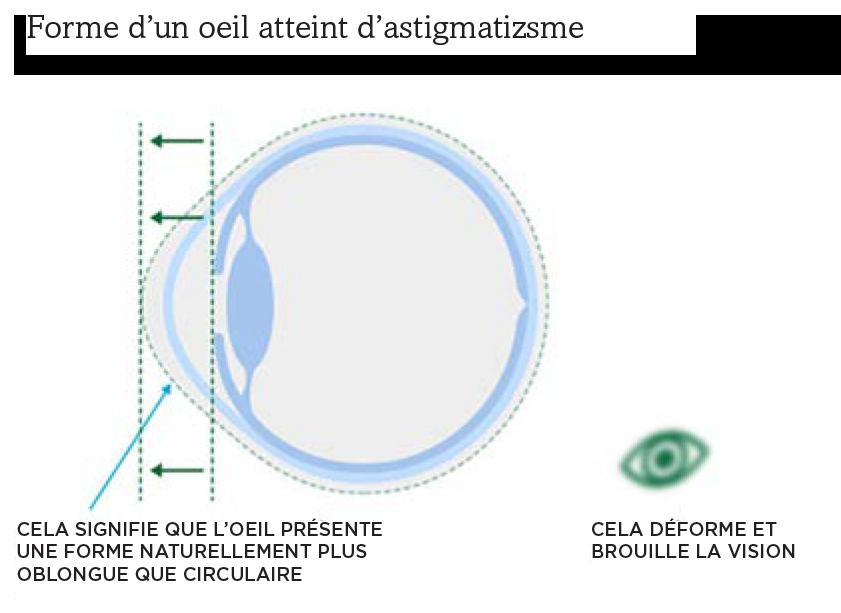 Dessin montrant la forme d'un œil atteint d'astigmatisme