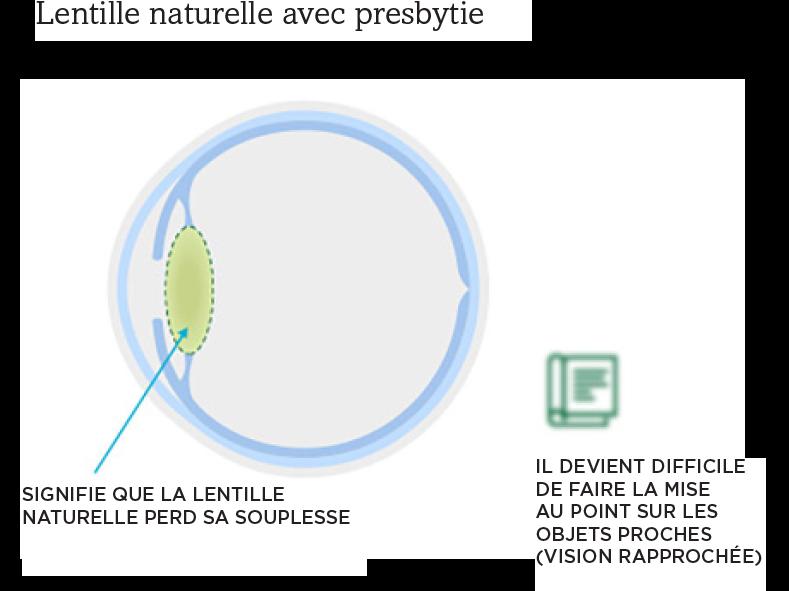 Image d'une lentille oculaire naturelle présentant une presbytie