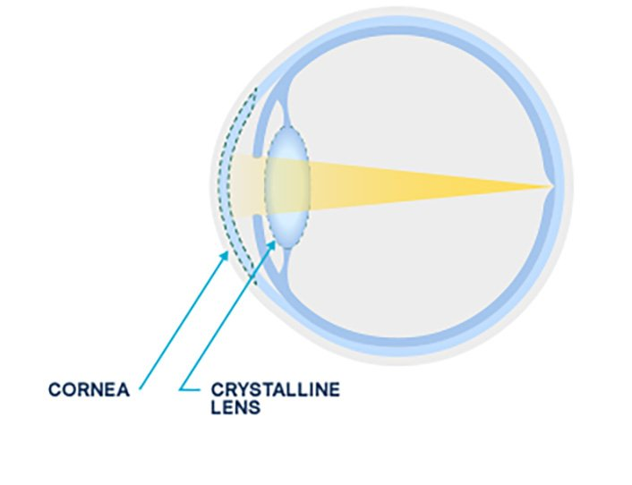 Diagram of a normal lens versus a cloudy lens from an eye cataract