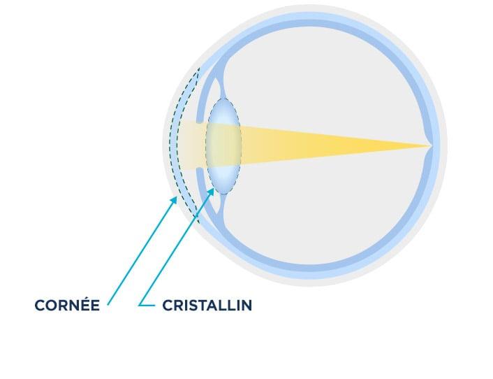 Schéma d'un cristallin normal comparé au cristallin voilé d'un œil atteint de cataracte