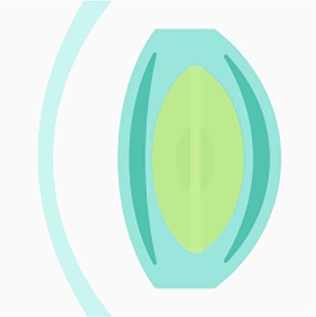 Schémas montrant une opacification modérée du cristallin due à la cataracte