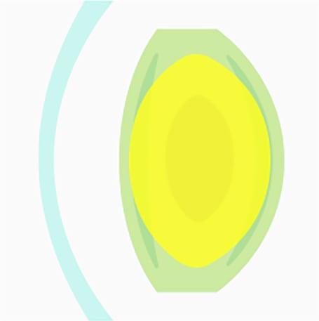 Schémas montrant une opacification très avancée du cristallin due à la cataracte